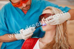 Diş Beyazlatma Nedir