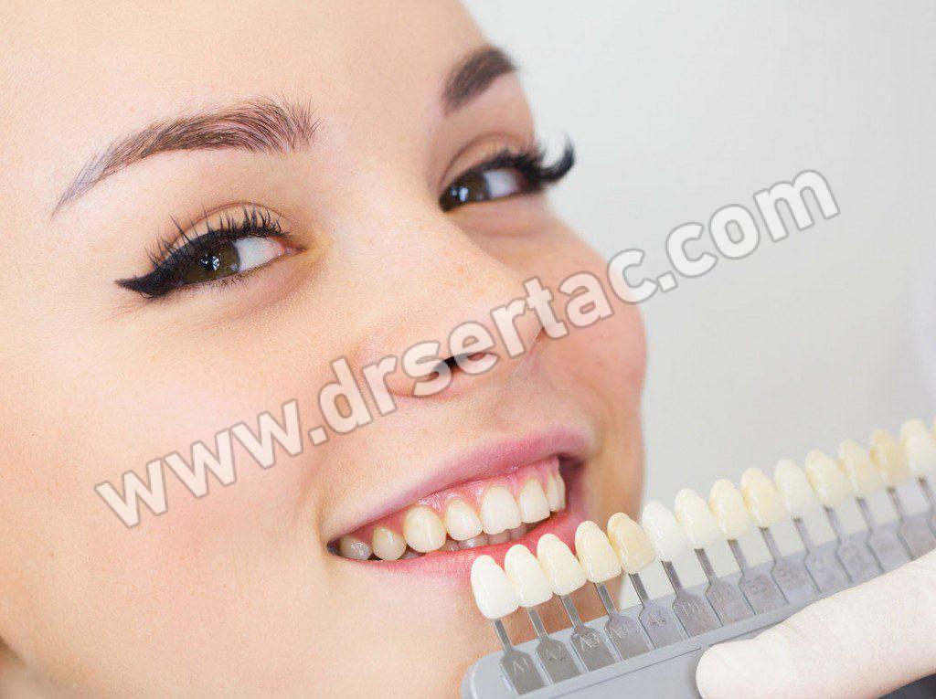 Diş Beyazlatma Zararlı Mı?