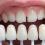 Diş Beyazlatmanın Sihirli Dünyası