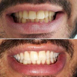Diş beyazlatma önce sonra örnek fotoğraf. Dİş Hekimi Sertaç Kızılkaya arşivi